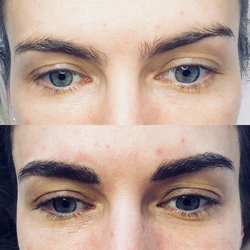 dermopigmentation-avant-aprecc80s-e1541237922458.jpg
